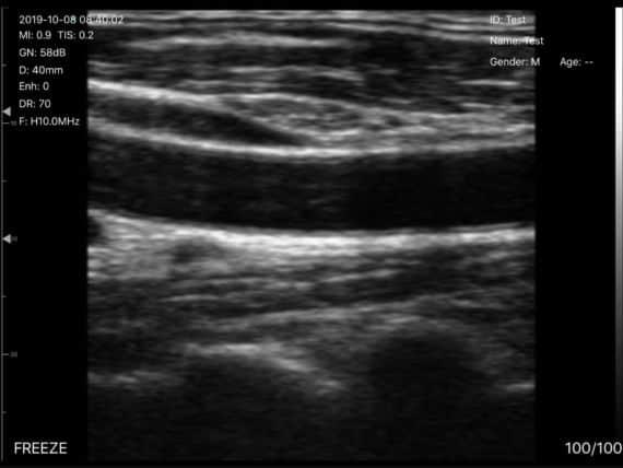 UProbe-C4PL-Common-Carotid-Artery